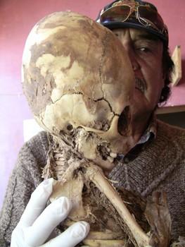 Crânios alongados do Peru terão os seus DNAs testados